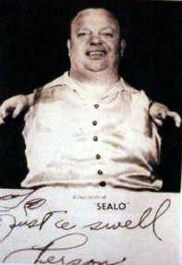 Grady Stiles, el chico langosta Opera-48